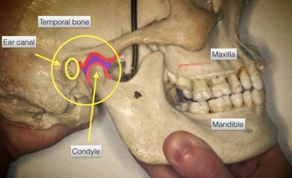 Best Treatment for Ear Pain Caused by TMJ