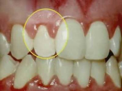Advanced Periodontal Disease and How to Treat It