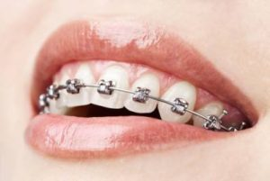 Affordable (Orthodontics) Braces for Adults