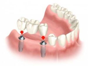 Alternatives to Dental Implants