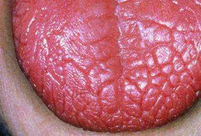 Anemia Tongue (Beefy Red Tongue)