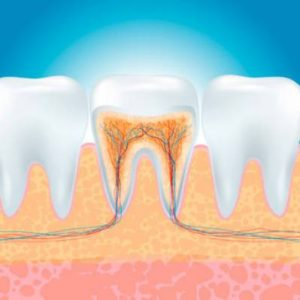 Average Cost of Root Canal Treatment in US