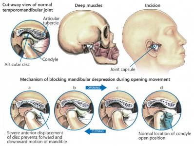 Best Treatment of Temporomandibular Disorders (TMJTMD Therapy)