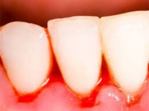 Bleeding Gums When Brushing