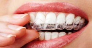 Bruxism - How to Stop Nighttime Teeth Grinding