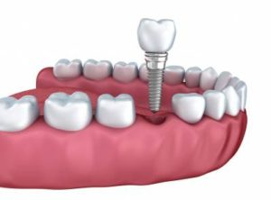 Cost for Dental Implant