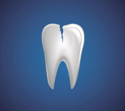 Cracked Tooth During Pregnancy