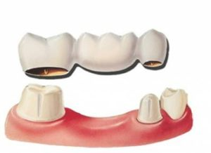 Dental Bridge vs. Implant What to Choose and Cost