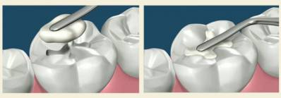 Dental Filling When You Need It, Pain Before and After, Replacing Filling