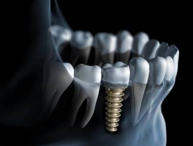 Dental Implants Reviews