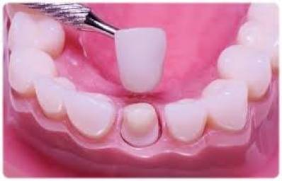 Difference Between Dental Crowns And Tooth Bridges