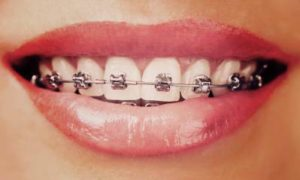 Different Types of Braces for Teeth