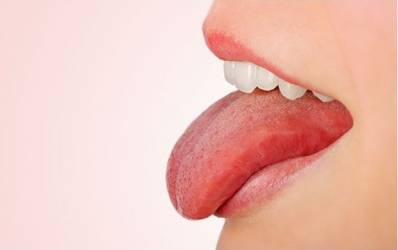 Disease of the Tongue