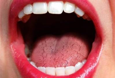 Dry Mouth Causes, Symptoms and Treatment