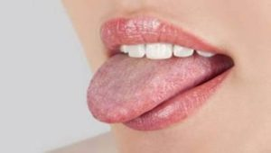 Dry Mouth Symptoms, Causes and Treatment