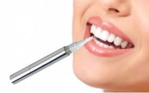 Effectiveness of Teeth Whitening Pen and How to Use It