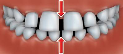 Gaps Between Teeth Treatment and Prevention