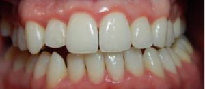 Gum Disease (Gingivitis) in Adults