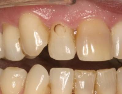 How to Remove Stains From Teeth