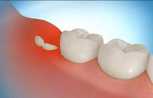 How to Stop Wisdom Tooth Pain