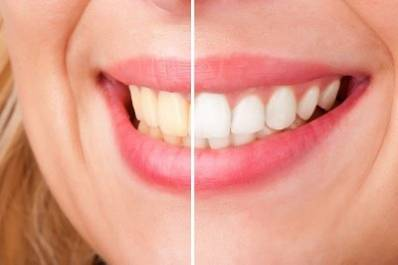 Hydrogen Peroxide Teeth Whitener