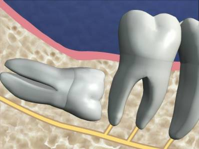 Impacted Teeth Wisdom Tooth Pain and Treatment
