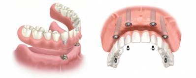 Implant-supported Denture