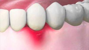 Inflamed Gums Causes and Remedies