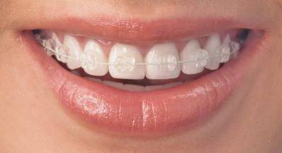 Invisible Braces Average Cost of Invisalign