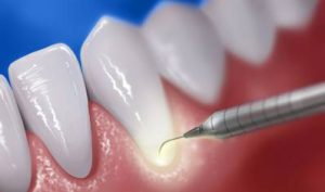 Laser Periodontal Therapy for Gum Treatment