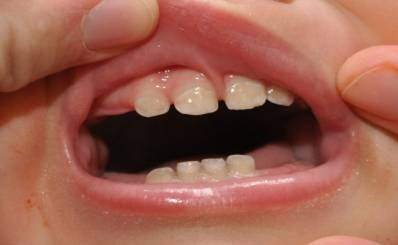 Molar Teething in Toddlers