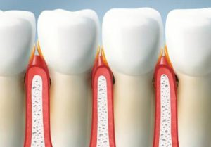 Periodontitis Pockets Dental Pocket Cleaning and Healing