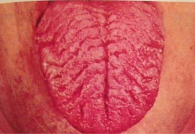 Scrotal Tongue Infections of the Tongue