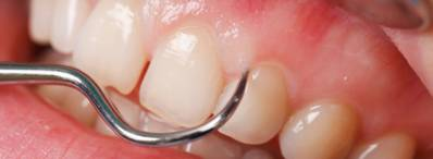 Swollen Gum Around a Tooth Causes and Prevention