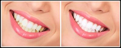 Teeth Whitening Procedure at Dentist
