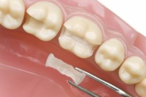 Tooth Cavity Filling Cost and Step-by-Step Procedure