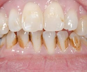 Tooth Discoloration (Stains on Teeth)