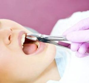 Tooth Extraction Procedure and Cost of Tooth Removal
