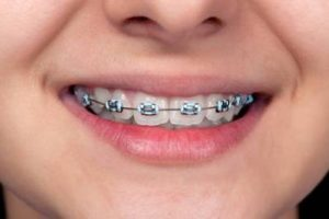 Underbite Braces for Teeth Correction Treatment Procedure and Cost