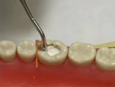 What Is A Dental Filling