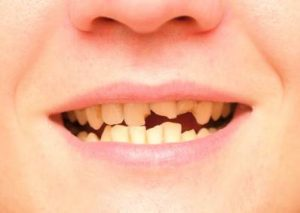 What to Do If You Have Chipped, Fractured or Broken Teeth