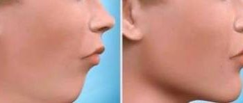 orthodontic jaw surgery: before-after