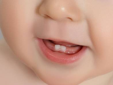 Babies First Teeth