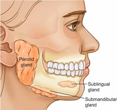 Blocked Salivary Gland