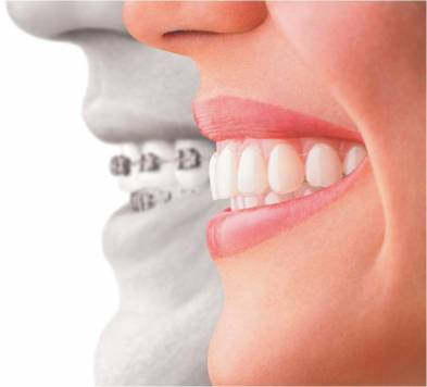 Braces Orthodontic Procedure and Care