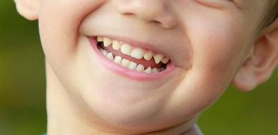 Brown Teeth in Babies