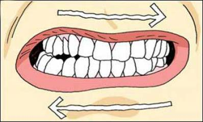 Bruxism (Teeth Grinding) Symptoms, Causes and Treatment