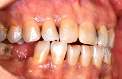 Bulimia Teeth Damage