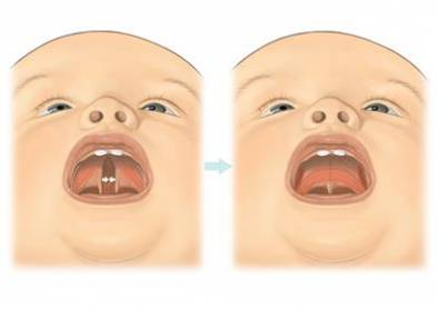 Cleft Palate Surgery Procedure