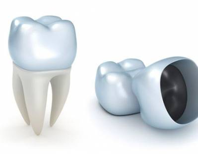 Common Types Of Dental Crowns